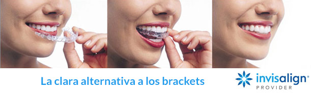 Precio aparato dental invisible