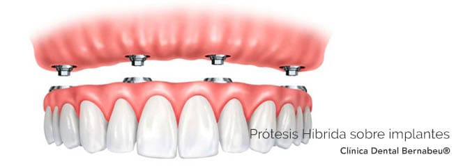 Prótesis dental Hibrida