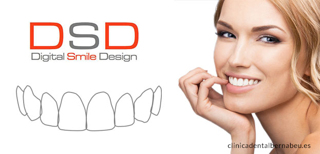 diseno sonrisas digital o DSD