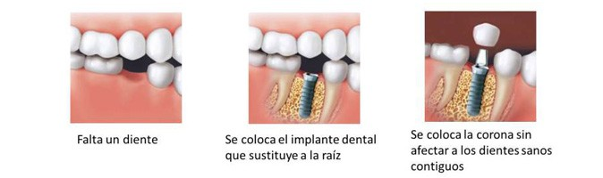 Colocación de Implantes dentales