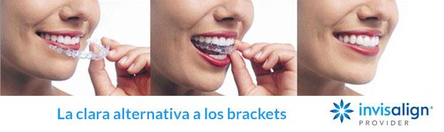 precio de aparato dental invisible