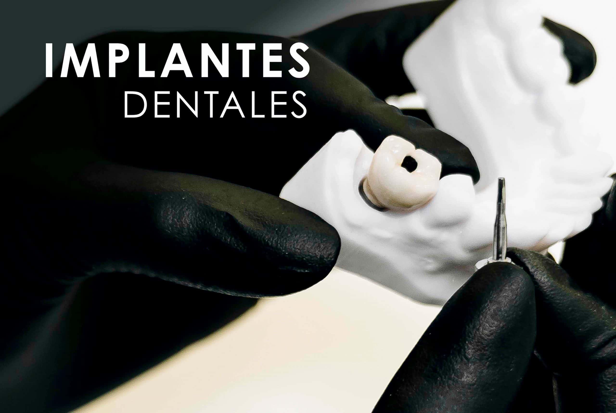 Implantes Dentales Clínica Dental Bernabeu