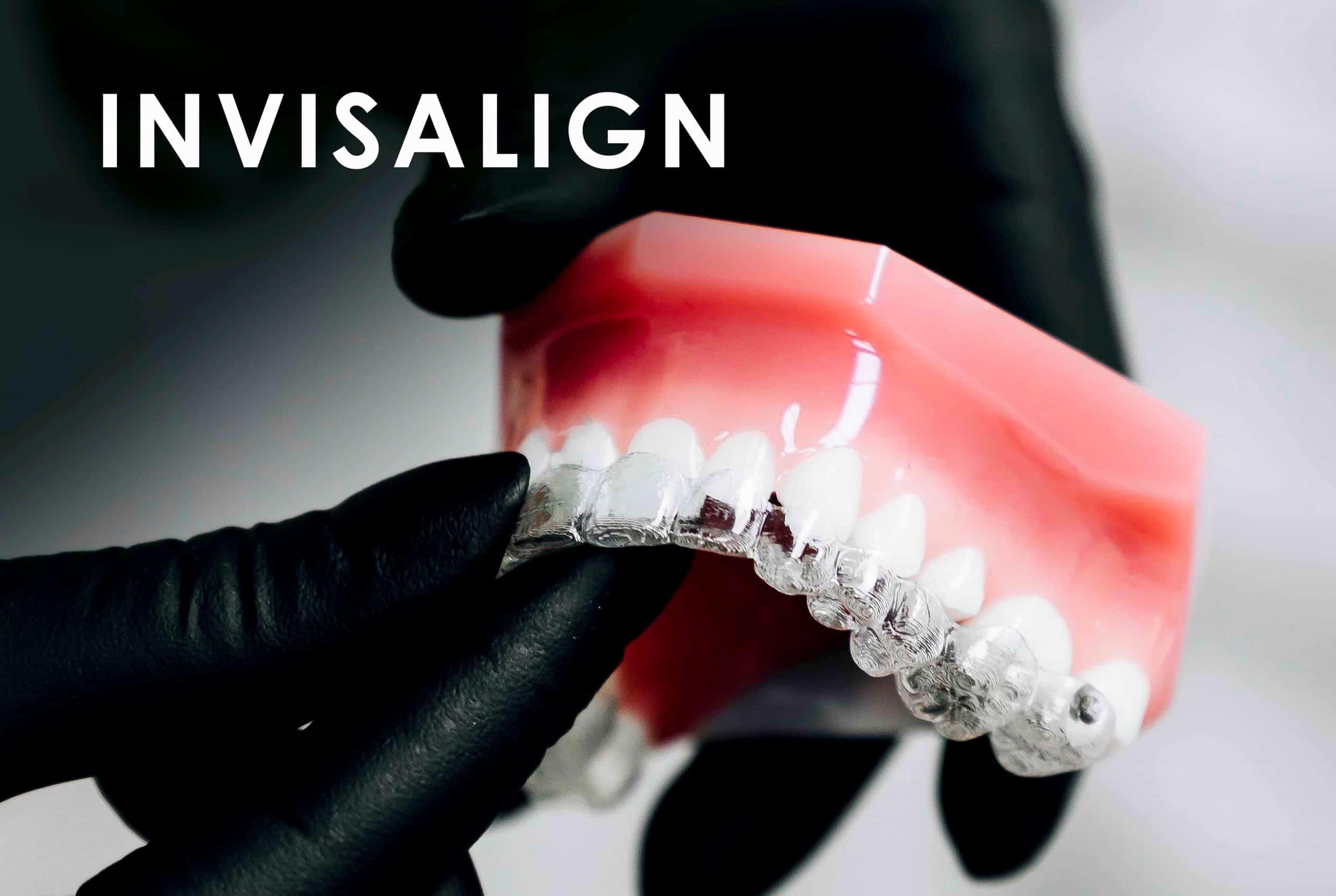 Ortodoncia Invisalign Clínica Dental Bernabeu