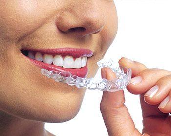 Invisalign ortodoncia madrid