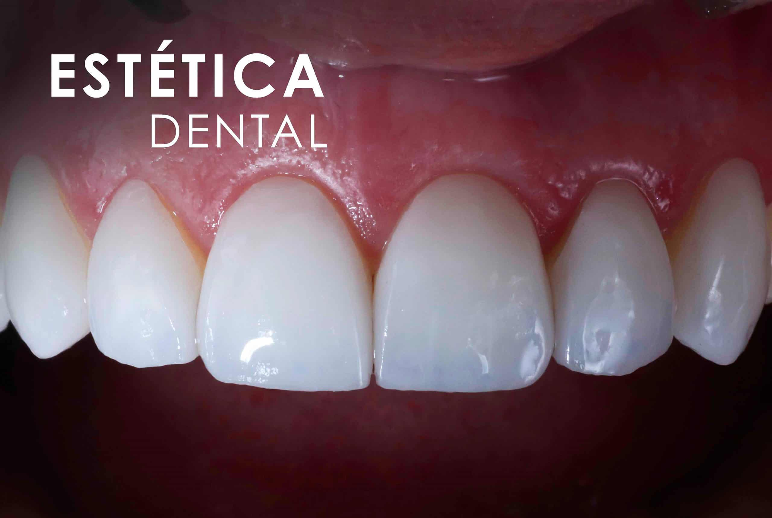 Estética Dental Clínica Dental Bernabeu