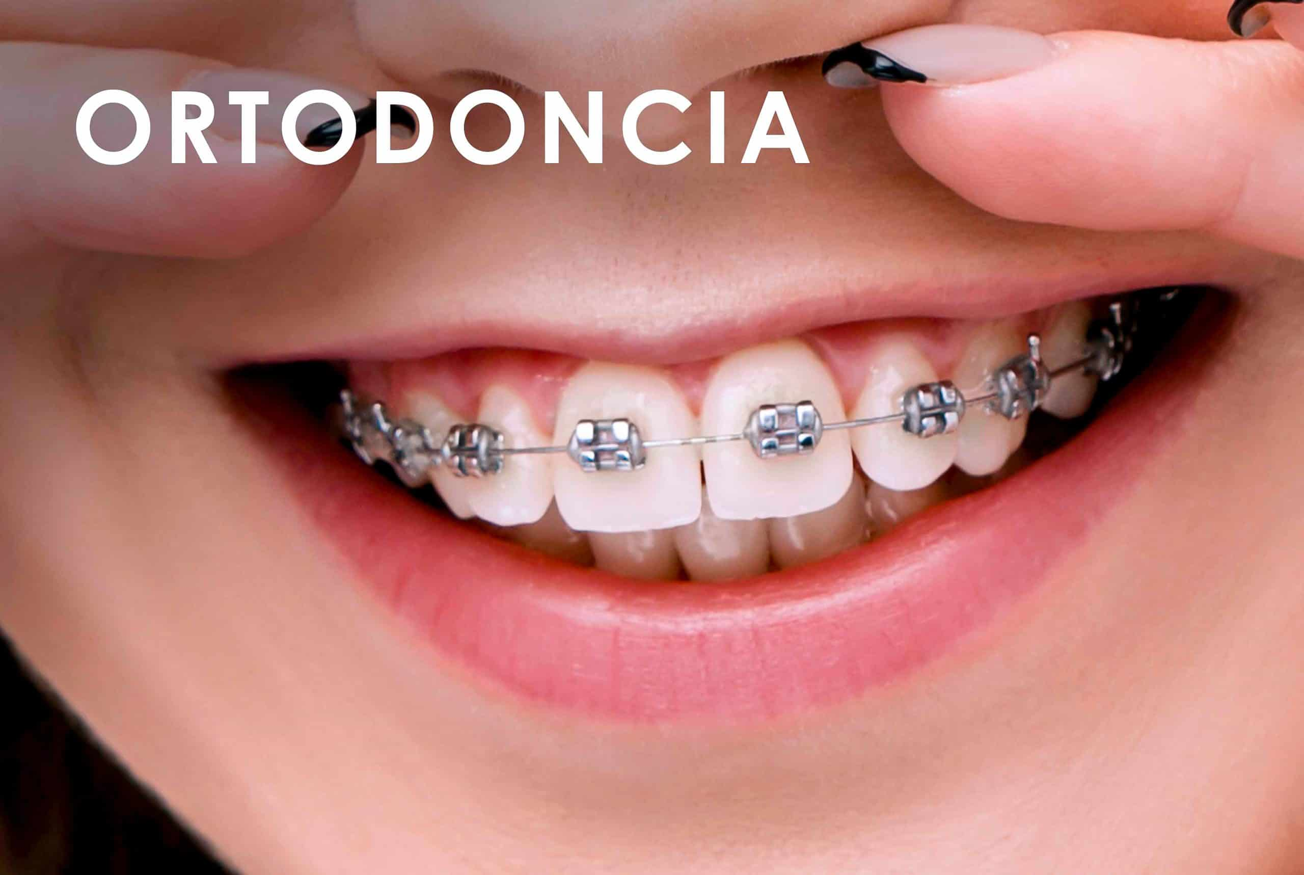 Ortodoncia Clínica Dental Bernabeu