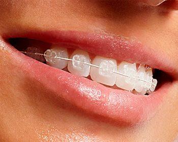 Clínica de Ortodoncia