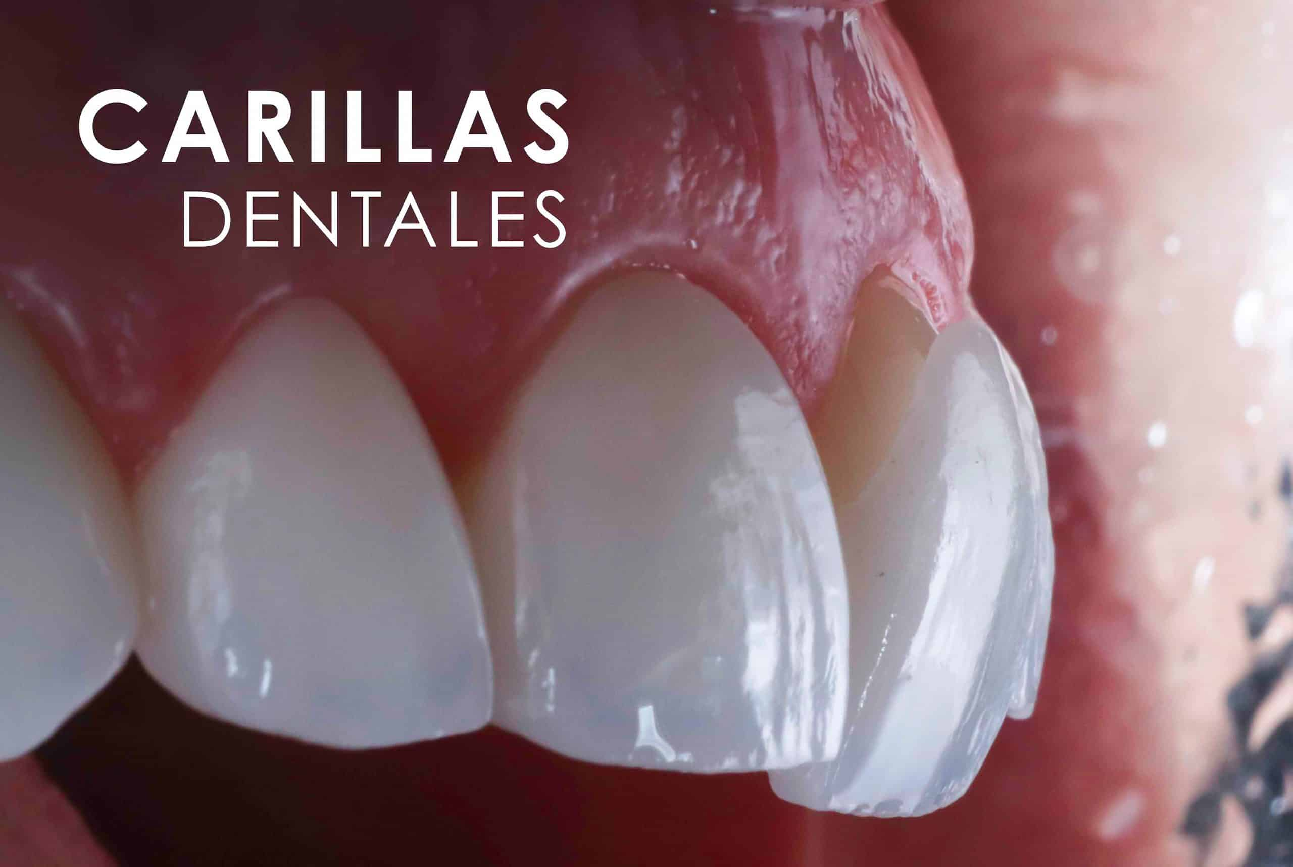 Carillas Dentales Clínica Dental Bernabeu