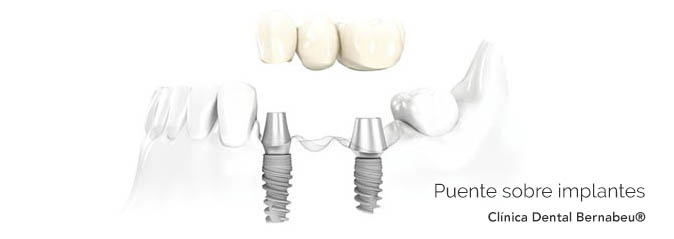 Prótesis dental puente