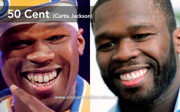 dientes famosos 50cent