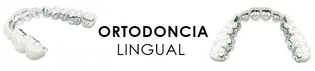 Ortodoncia lingual técnica madrid