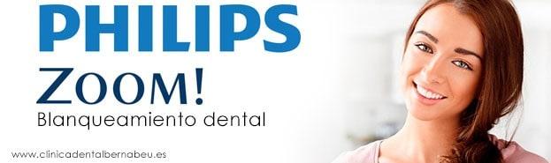 blanqueamiento dental en una sesion