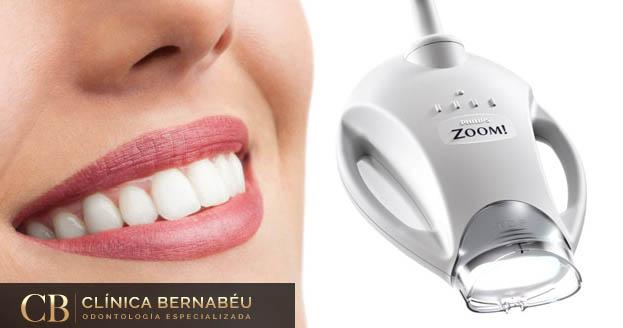 luz fría blanqueamiento dental