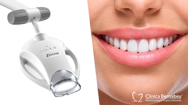 Blanqueamiento dental en una sesión