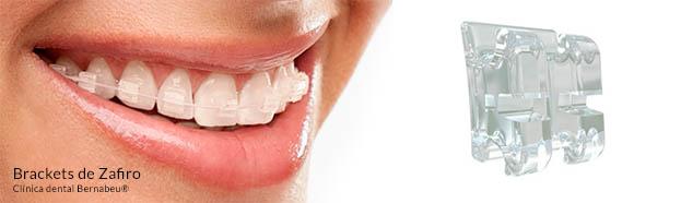 ortodoncia estética de zafiro