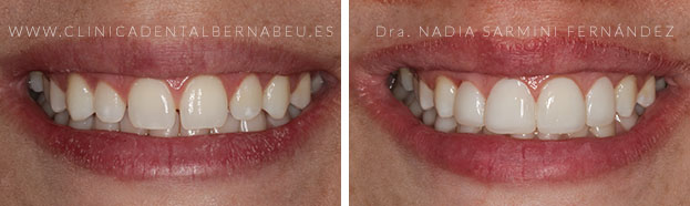 carilla dental composite