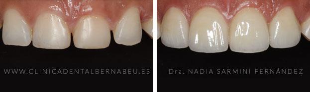 carillas dentales emax