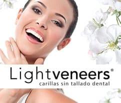 carillas sin tallado dental veeners