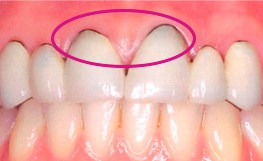 corona dental metal porcelana