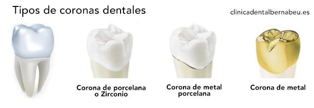 tipos de fundas coronas en madrid