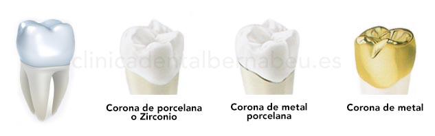 Coronas de Zirconio