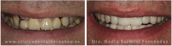 coronas dentales porcelana tipo