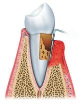 curetaje dental en madrid