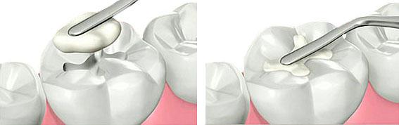 empaste dental composite Madrid