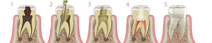 endodoncia tratamiento en madrid