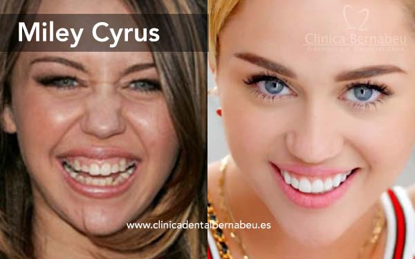 Famosos carillas cyrus