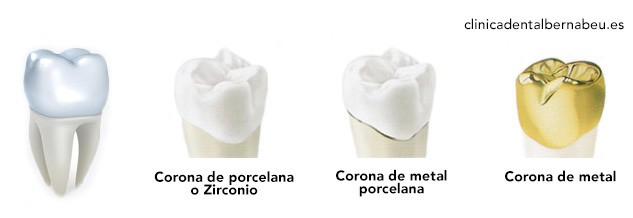 tipos de fundas dentales
