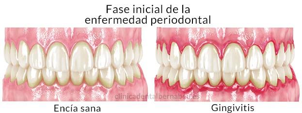 Diferencias entre la periodontitis y gingivitis
