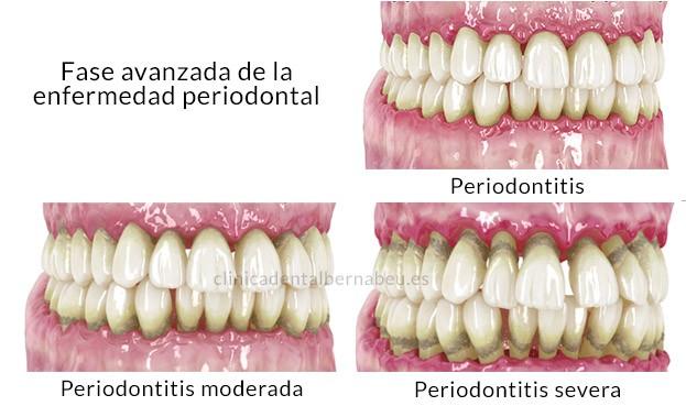 periodontitis diferencias gingivitis