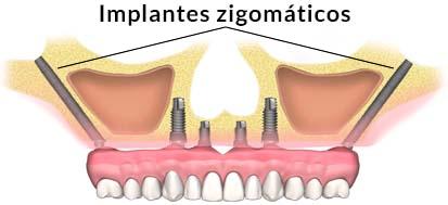 implante sin hueso zigomatico