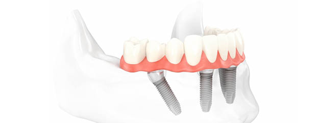 implantología dental carga inmediata