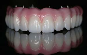 La dentadura hibrida