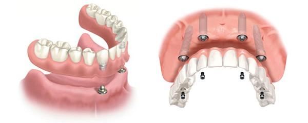 La dentadura postiza