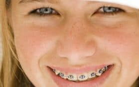 Tratamientos de Ortodoncia madrid