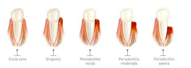 gingivitis periodontitis piorrea