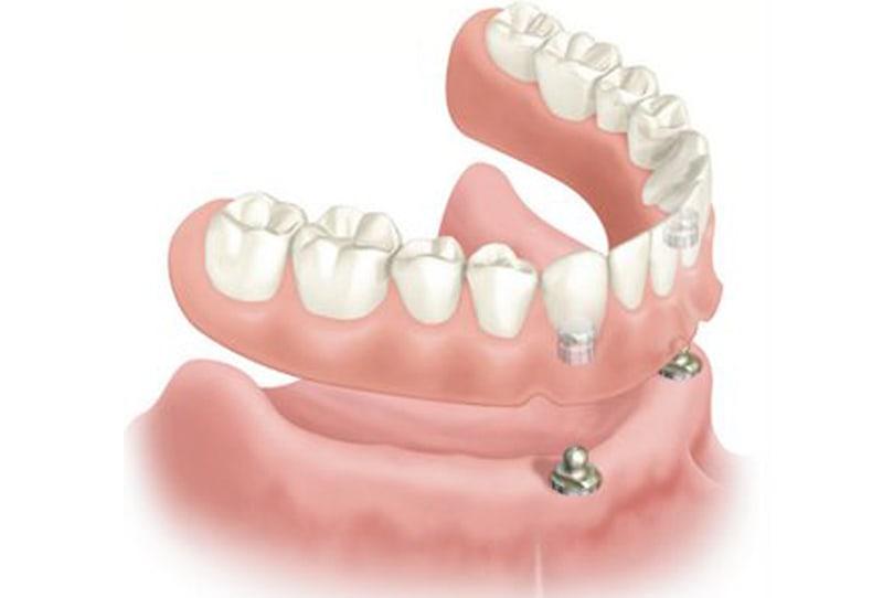 Protesis dental sobre implantes