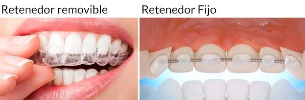 Retenedor de ortodoncia