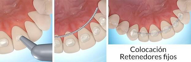 retenedores de ortodoncia fijos