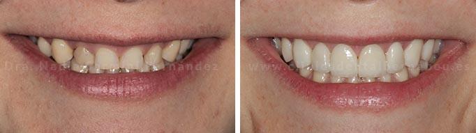 Antes y después carilla emax