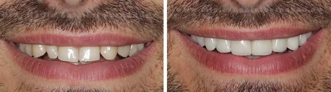 Carillas lightveneers