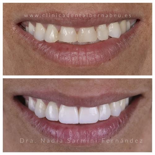 Sustitución de 4 carillas frontales de composite a porcelana + blanqueamiento dental.